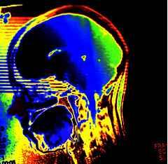 Image: 'BRAINADE! the Brain Grenade by Emilio Garcia'Found on flickrcc.net