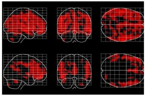 Areas of the brain affected by aging (in red) are fewer and less widespread in people who meditate, bottom row, than in people who don't meditate. Credit: Courtesy of Dr. Eileen Luders